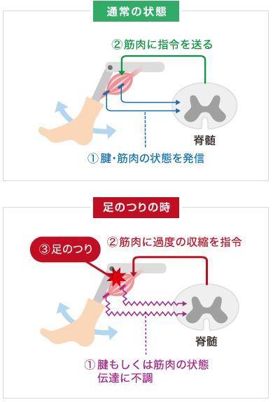 足の攣り対策.JPG